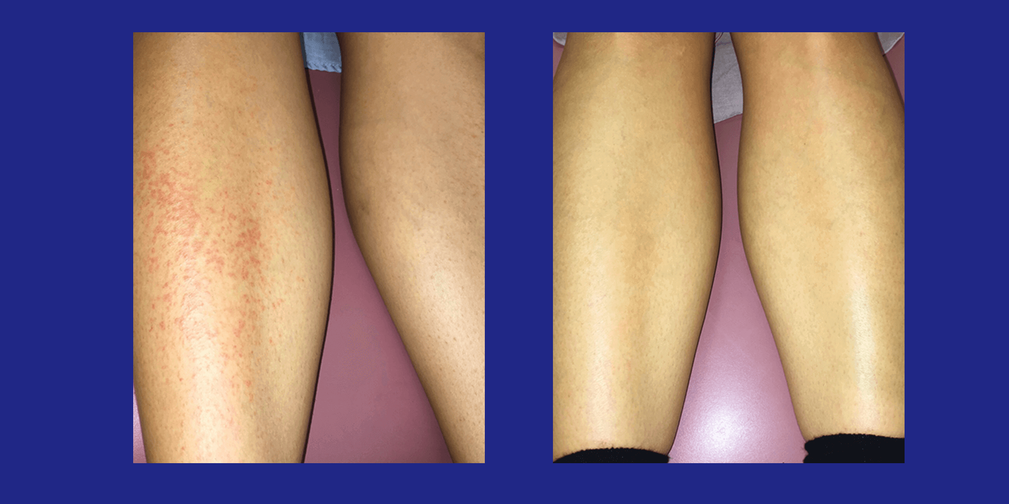 Measles on the Legs